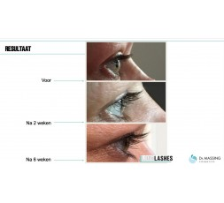Dr. Massing Long Lashes Wimper Serum 3 ml.